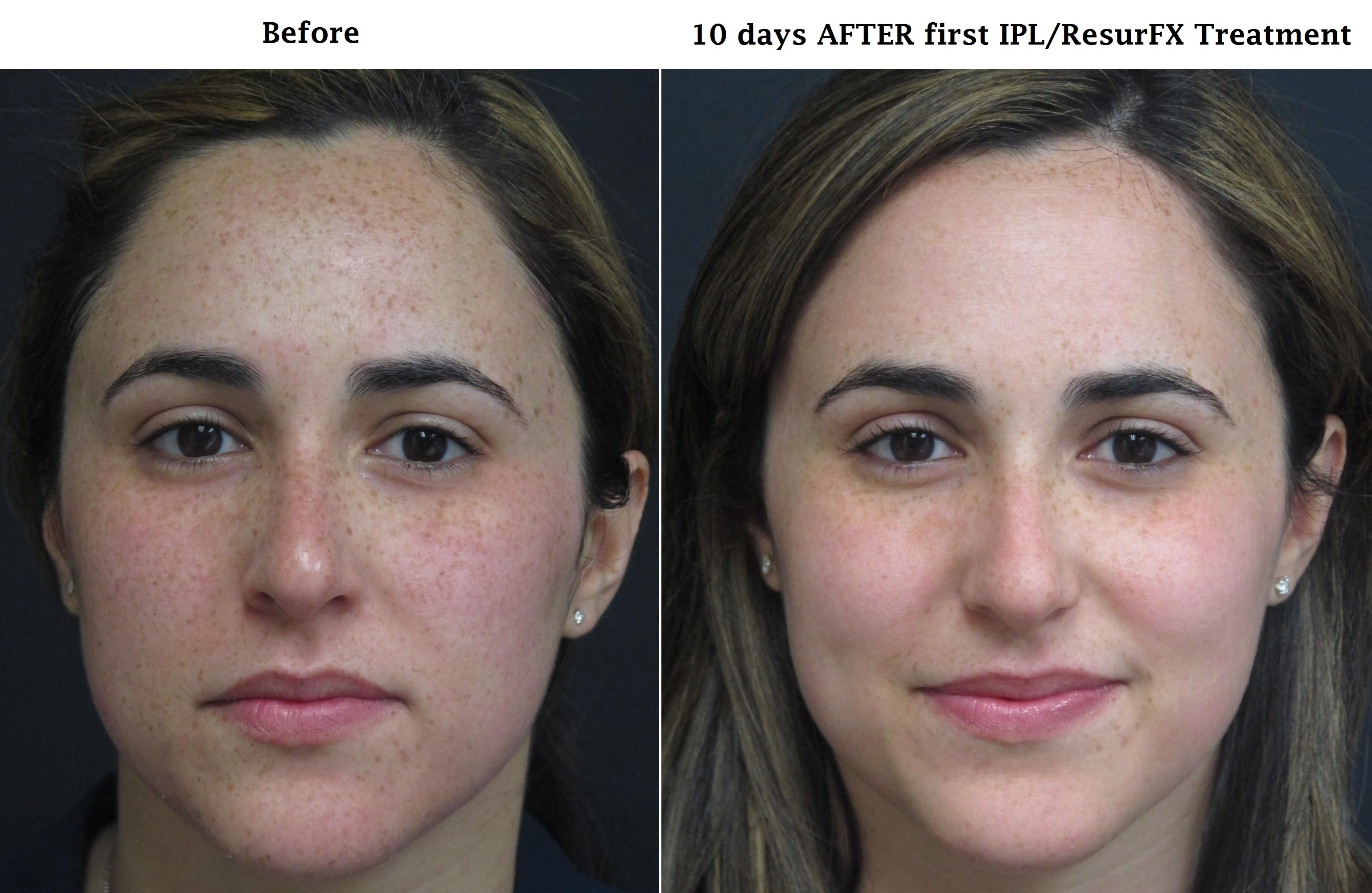 Before And After Photos Central Florida Dermatology