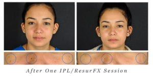 Before and After IPL/ResurFX