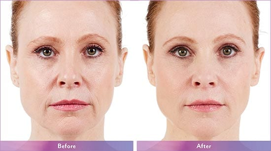 Juvederm Dermal Filler