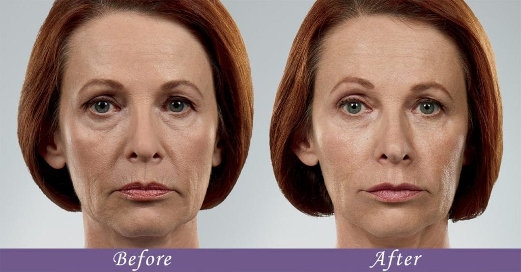 Juvederm Collection