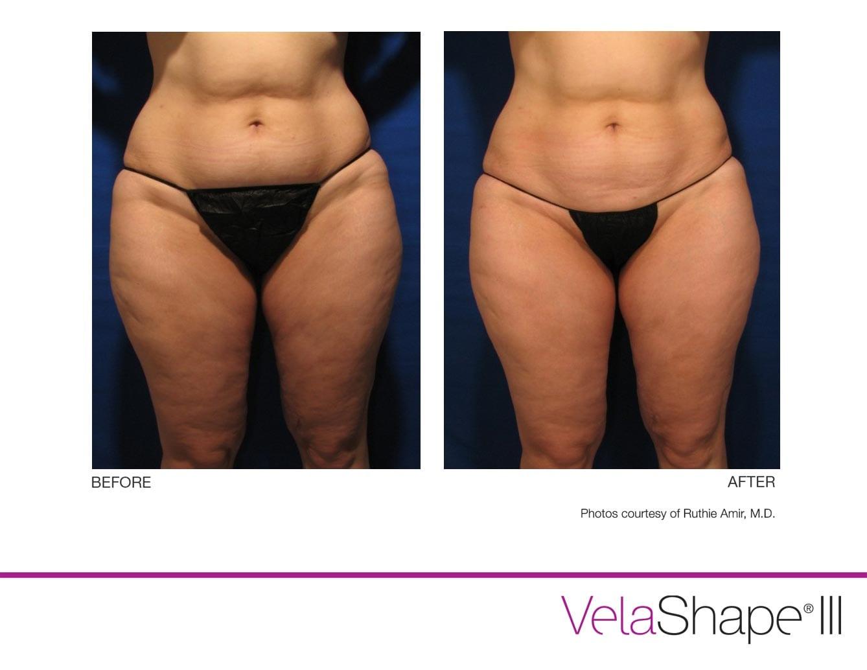 VelaShape Cellulite Reduction