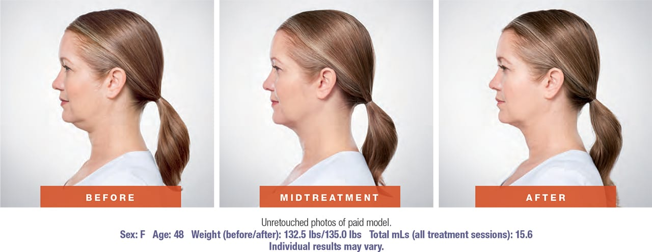 Side profile before during and after image set of a woman who received kybella injections