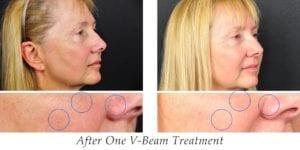 V-beam treatment
