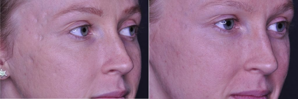 Acne Scar before and after picture